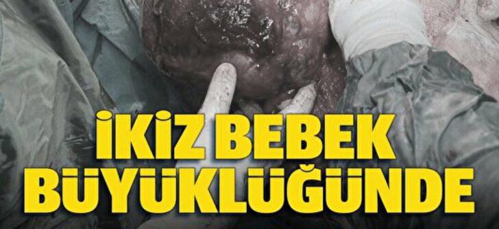 Bandırma'da yaşayan Murat Güney Doktorları şaşkına çevirdi